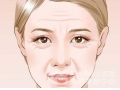 <b>抬头纹是怎样产生的?怎样治疗抬头纹效果比较好呢</b>