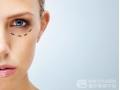 外切法祛眼袋与内切法祛
