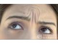 祛除眉间纹到底应该注射