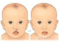 唇腭裂畸形的影响是多方面的吗?*佳治疗时间是什