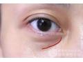 <b>超声刀可以祛除泪沟纹、法令纹、嘴角纹吗</b>