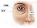 <b>荆州隐形祛眼袋具体要怎么实现</b>