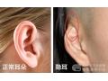 什么是隐耳?隐耳要如何矫正治疗