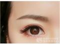 提眉术之后眼睛肿胀多久能恢复