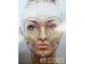 <b>线雕埋的可吸收蛋白线代谢后脸会怎么样</b>