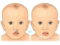 唇腭裂修复的手术方法及注意事项有哪些呢