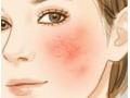 <b>红血丝为什么会产生?引起脸部红血丝的常见诱因有哪些</b>
