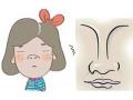 <b>【专家介绍】蒜头鼻整形矫正方法有哪些</b>
