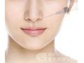 微整形隆鼻填充哪种材料