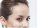 <b>疤痕体质能丰额头吗?丰额头整形会不会留下疤痕</b>