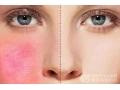 <b>激光去红血丝对皮肤有没有伤害呢</b>