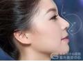 鼻翼缩小整形术前术后有什么要注意的吗