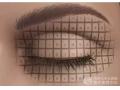 双眼皮手术没做好可以修复吗