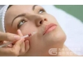玻尿酸注射祛口周纹的效