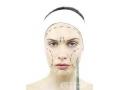 面部吸脂改脸型要注意哪些事项