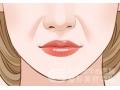 自体脂肪填充鼻唇沟有没