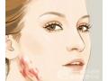 沙市想要修复疤痕的方法有哪些呢