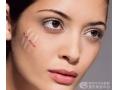 脸上有疤痕要怎么治疗呢?疤痕修复要注意什么