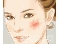 <b>激光修复皮肤红血丝后要如何护理</b>