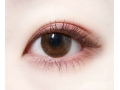 <b>单眼皮近视眼做双眼皮手术对眼睛有伤害吗</b>