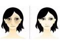 <b>荆州做祛眼袋手术的效果可以保持多长时间</b>
