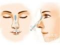 荆州医院玻尿酸注射隆鼻效果能维持多久