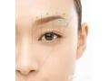 <b>切眉术有哪些特点呢?切眉术后应怎样进行护理呢</b>