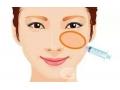 <b>泪沟填充可以用玻尿酸吗?填充泪沟纹一支玻尿酸够不够</b>