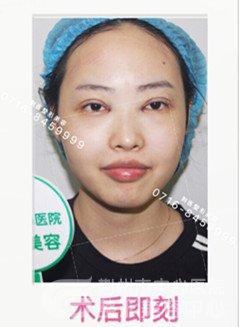 沙市真人全切双眼皮图片记录,术后效果惊艳不止一点点