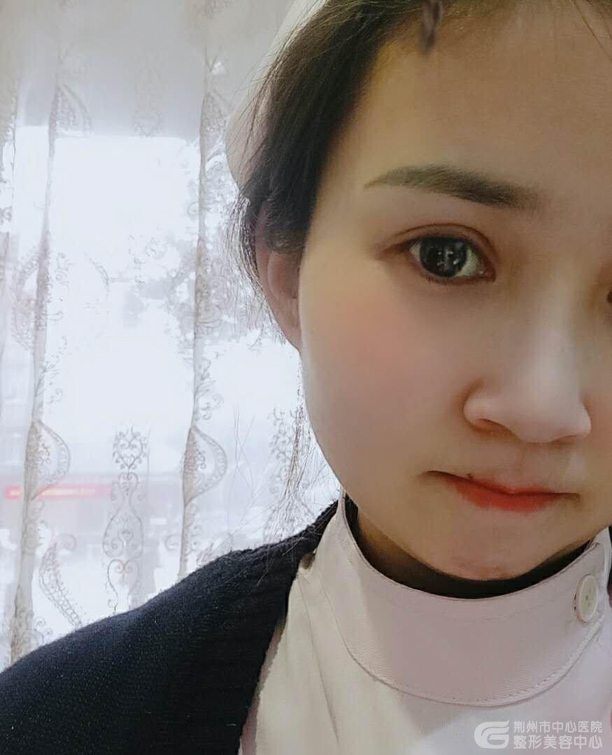 荆州双眼皮真人体验:原来我有了双眼皮之后这么好看