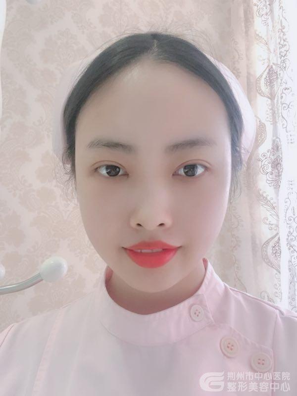 在荆州医院半年前做的双眼皮,现在成了这样