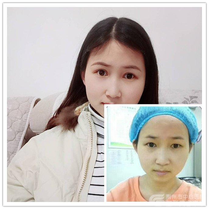 【真人案例】荆州医院割双眼皮术后三个月效果对比图