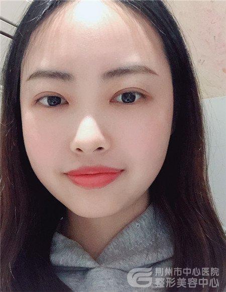 【整形日记】分享荆州医院眼综合手术100天恢复过程记录图