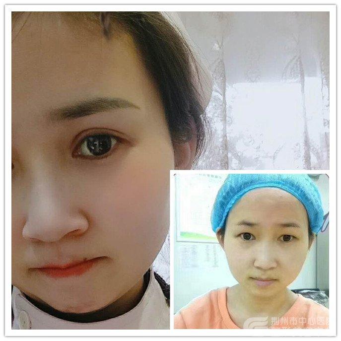【真人案例】揭秘沙市导诊护士做切开双眼皮手术全过程