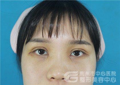 分享荆州护士的全切双眼皮+开眼角恢复前后对比照