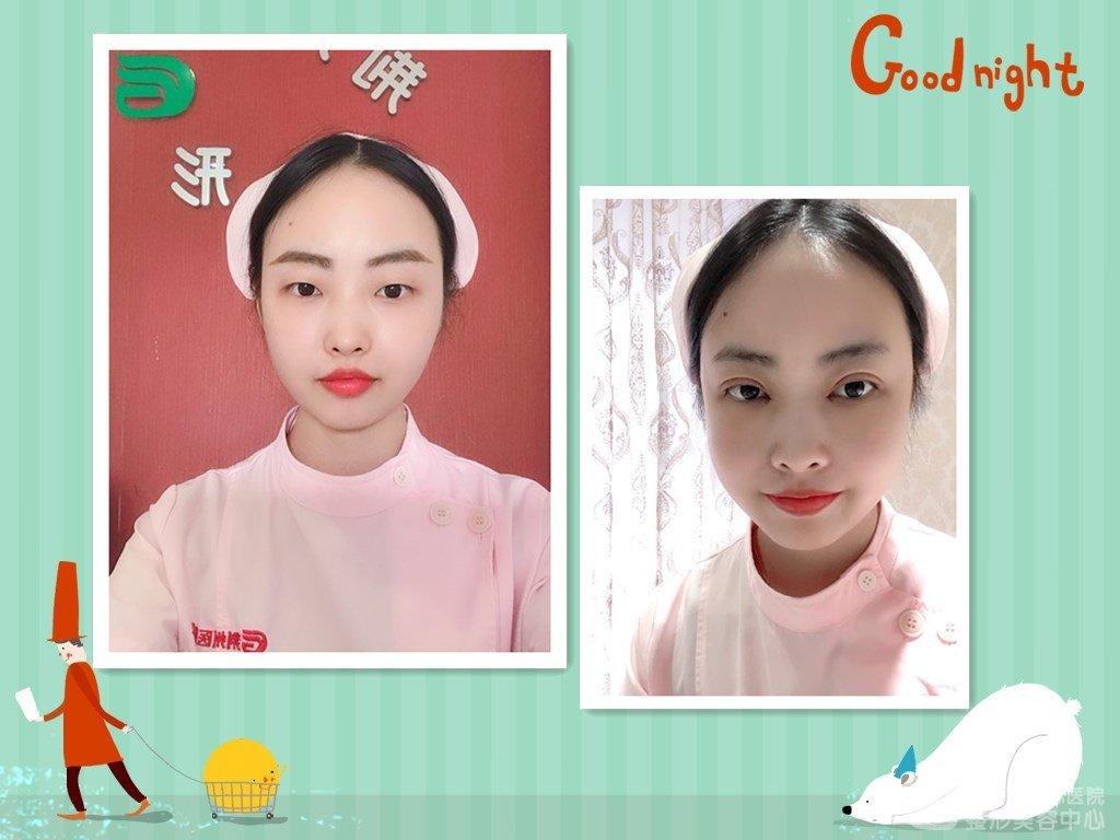 分享荆州肿眼泡妹子割双眼皮开眼角前后效果对比图