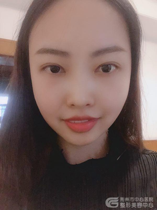 分享荆州公立医院真人分享双眼皮开眼角手术亲身经历