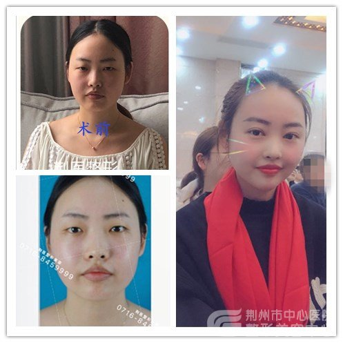 沙市割双眼皮真人案例:记录双眼皮开眼角一个月对比图