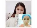 <b>【真人案例】荆州医院割双眼皮术后三个月效果对比图</b>