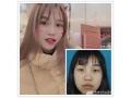 <b>分享荆州护士的全切双眼皮+开眼角恢复前后对比照</b>