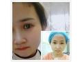 <b>【真人案例】分享荆州医院割双眼皮手术全过程示意图</b>