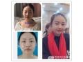 分享荆州做全切双眼皮、开眼角恢复一个月前后