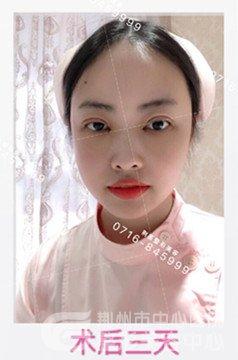 分享荆州做全切双眼皮、开眼角恢复一个月前后对比图